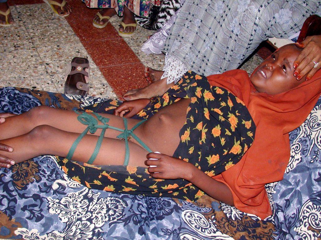 ختنه زنان - ناقص سازی جنسی زنان